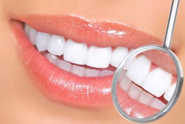 Common Misconception About Dental Veneers